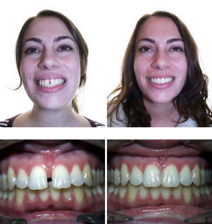 leslie before and after invisalign