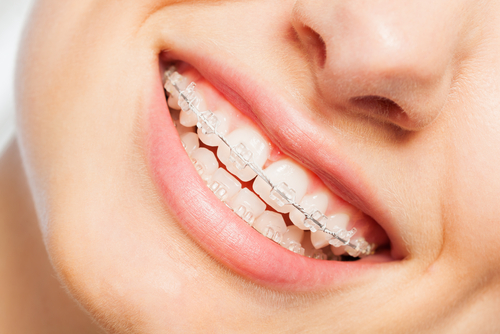 love your dental braces philadelphia orthodontists center city
