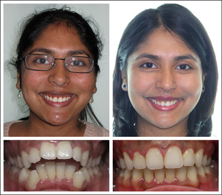 Braces adult treatment