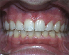 Orthodontic Treatment Case Study